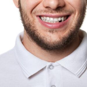 przyczyny ukruszeń i złamań zębów