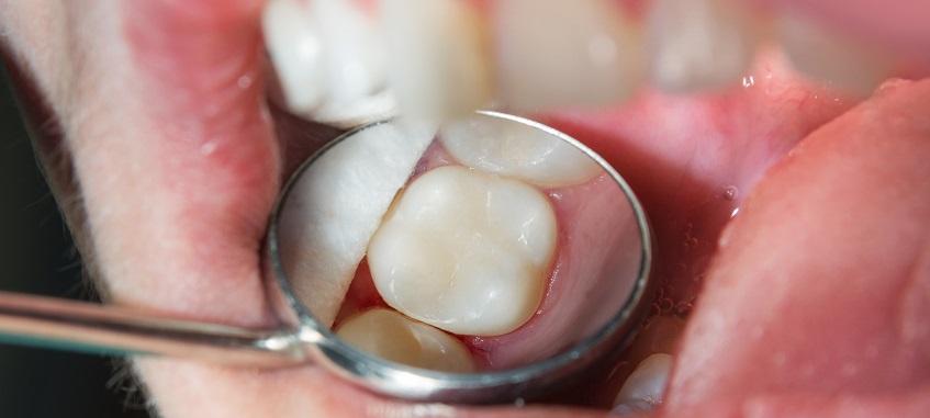 wypełnienie zęba kompozytem