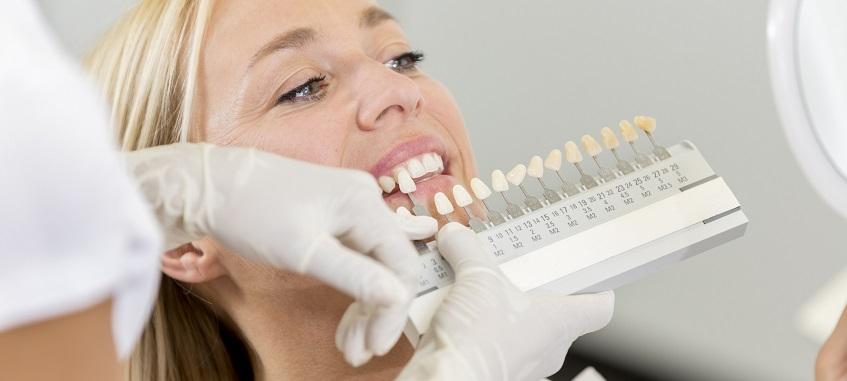 dobieranie koloru zębów