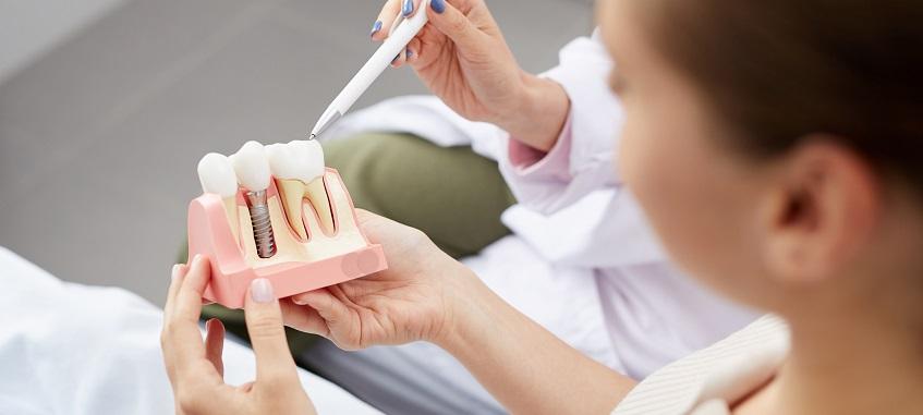 implant zębowy na modelu